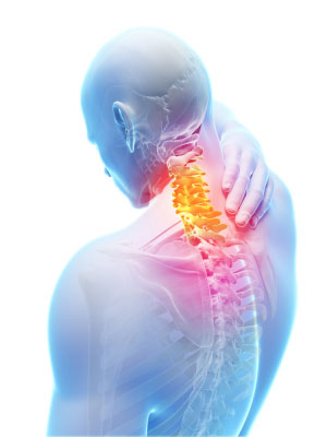 Spinal Injury Lawsuits (For: Back Pain & Paralysis Claims)
